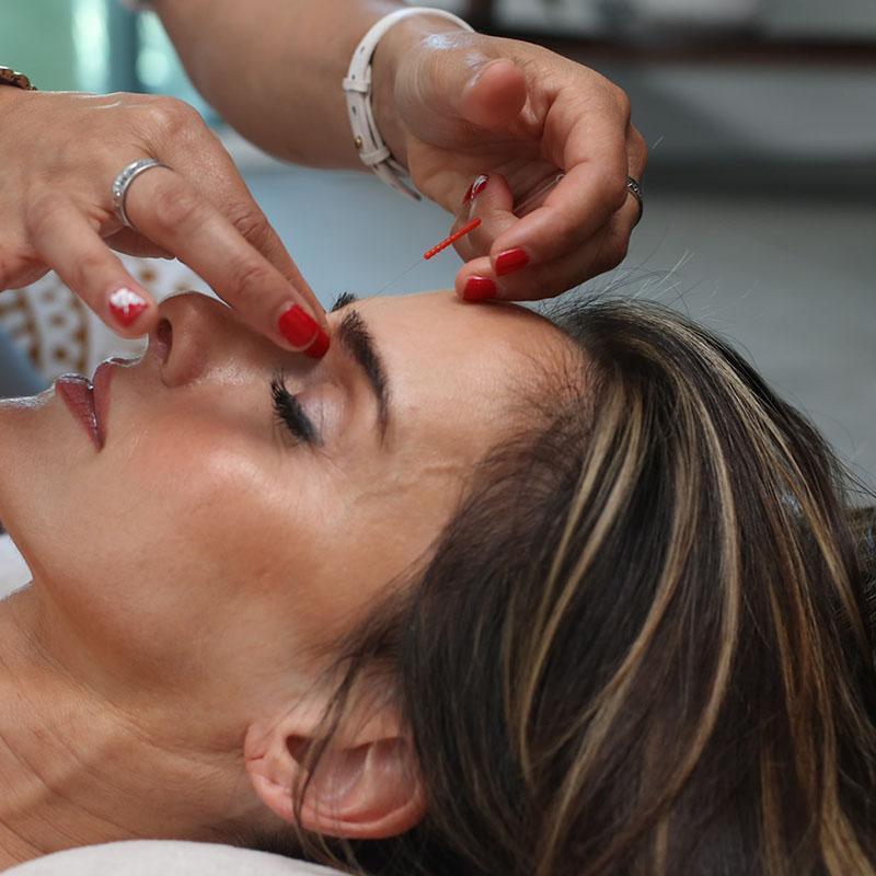 TCM Akupunktur - Dr. med. Sabine Habelt